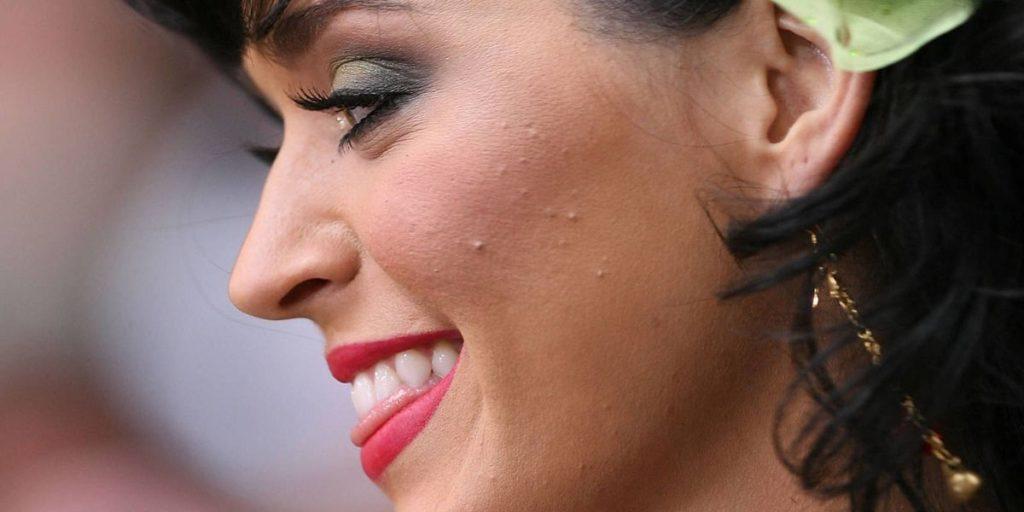 Все, как у людей: знаменитости с проблемной кожей лица